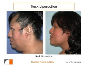 Large Neck liposuction fat removal before after