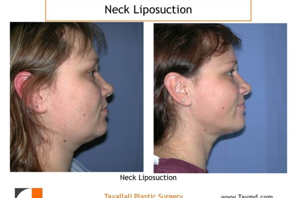 Neck liposuction fat removal before after