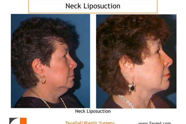 Neck liposuction to remove neck fat before after
