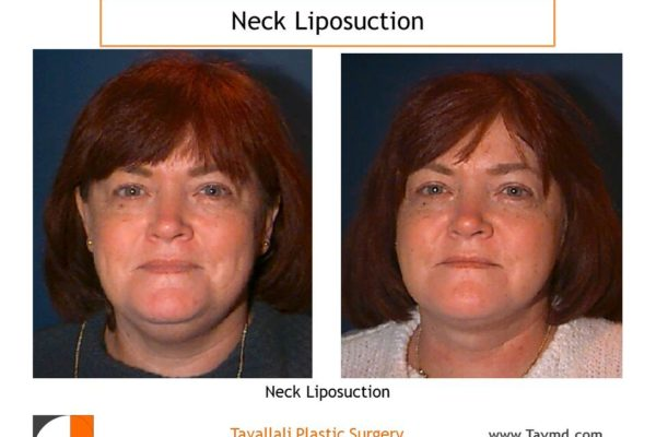 Front view before after neck liposuction Fairfax county VA
