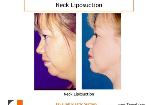 Profile view woman with neck liposuction