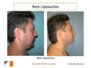 Neck liposuction surgery in man before after result
