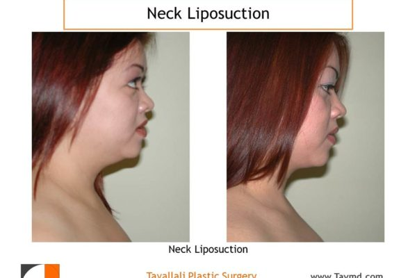 Neck lipo surgery in woman before after result