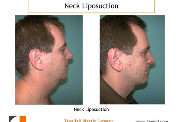 Neck lipo surgery in man before after result