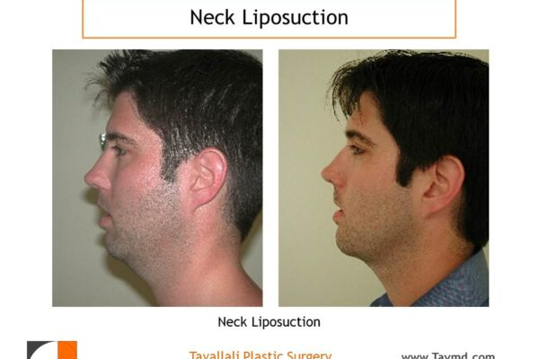 Young man with before after neck liposuction surgery
