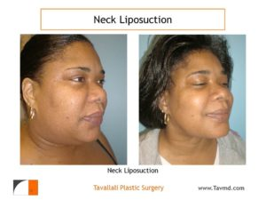Neck liposuction surgery result before after