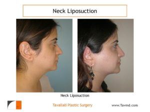 Neck liposuction before after in VA