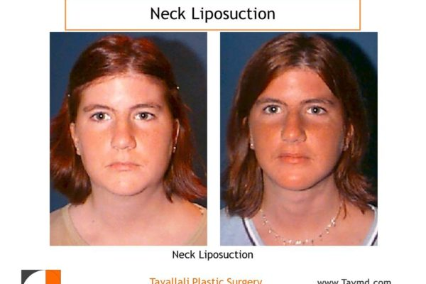before after neck liposuction surgery young girl