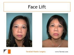 Before after full face lift virginia