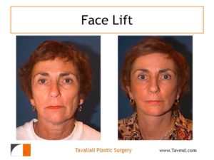 Face lift before after surgery by Dr Tavallali