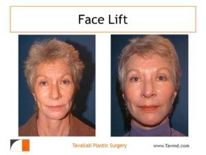 Facelift before after plastic surgery