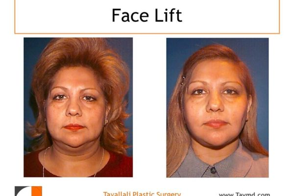 Before after facelift surgery result of woman