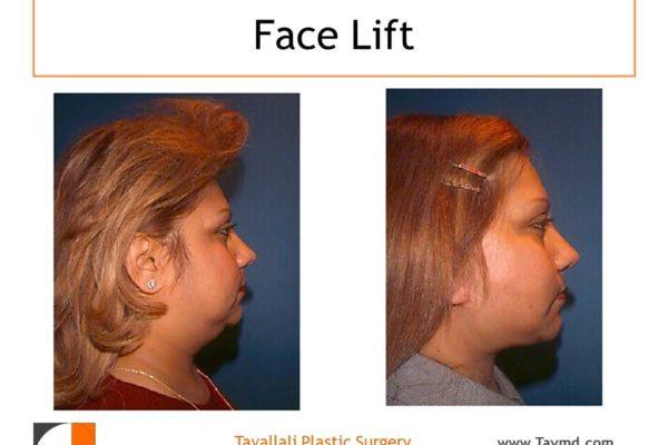Facelift surgery results Vienna VA