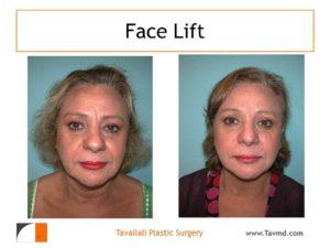 Face lift surgery Vienna Va