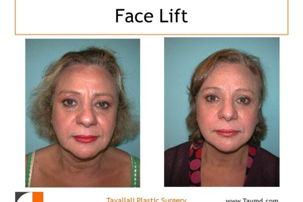 Face lift surgery Vienna Va