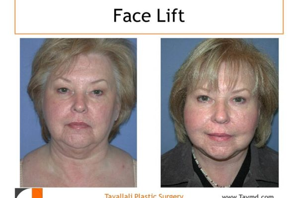 Before after face lift of woman in Virginia