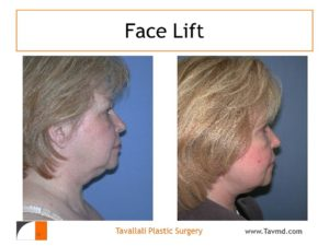 Face lift before after Virginia
