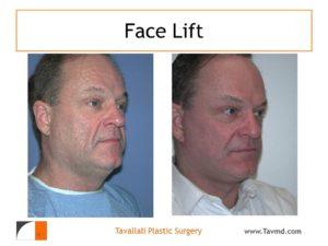 Face lift surgery of man result VA