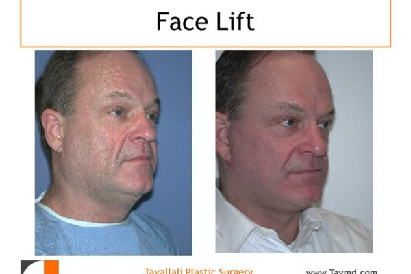 Face lift surgery of man result VA