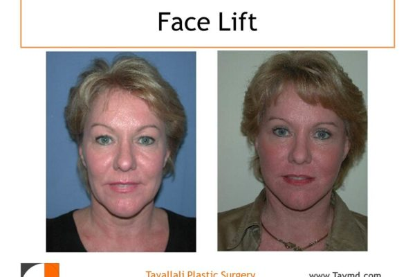 Before and after facelift by Dr. Tavallali