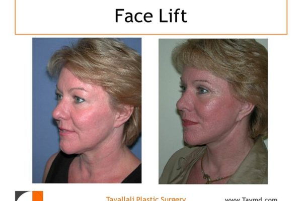 Facelift result of woman in Vienna Virginia