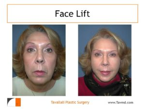 Facelift before after Dr.Tavallali