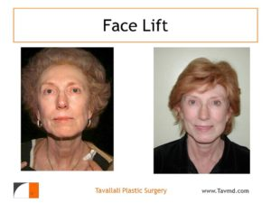 Result of facelift surgery in Virginia