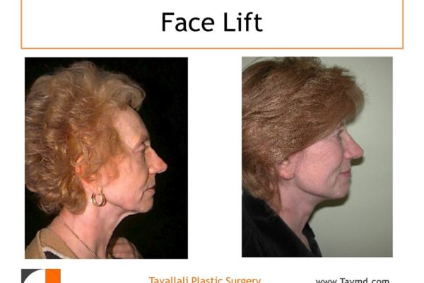 Face lift surgery results in vA