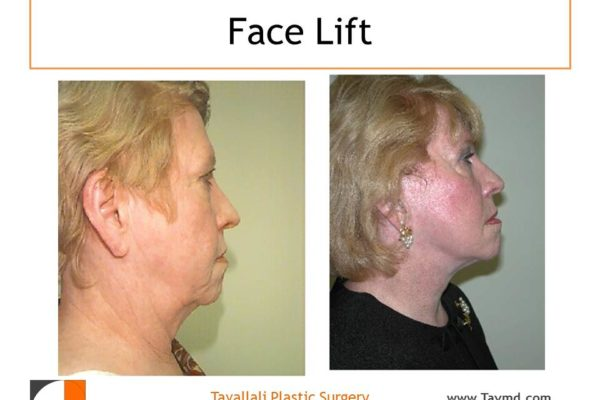 Face lift surgery before after in VA