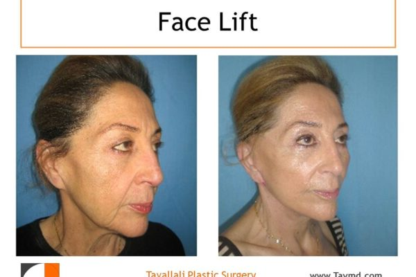 Facelift before after Vienna Virginia
