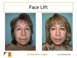 Face lift surgery before after woman
