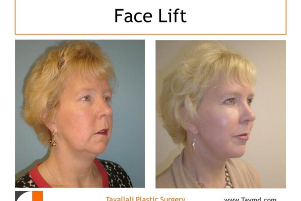 Face lift surgery before after of woman