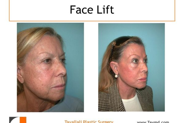 Before and after of Facelift
