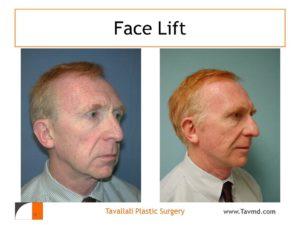 Male face lift surgery Northerns VA