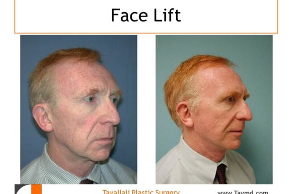 Male face lift surgery Northerns VA