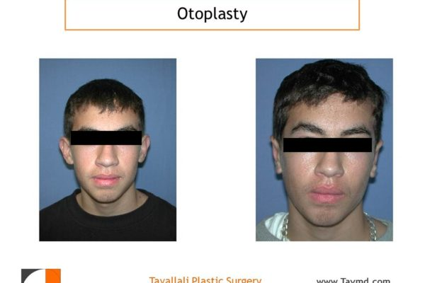 Otoplasty for Men ear pinning