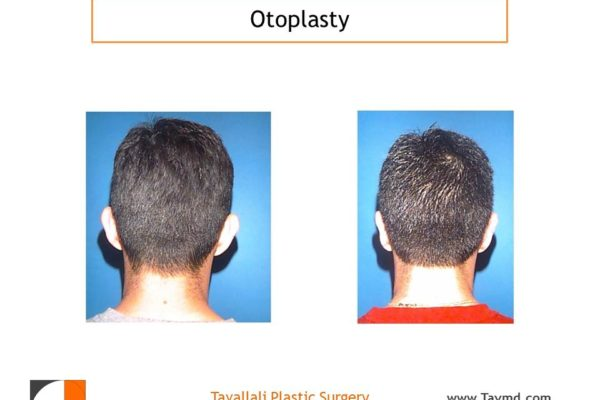 Otoplasty Ear Pinning before after