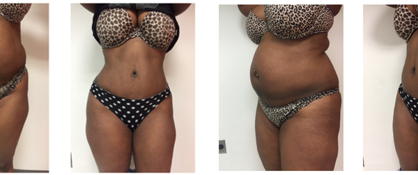Tummy tuck abdominoplasty before after with BBL