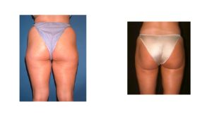 Thigh liposuction before & after Fairfax county VA