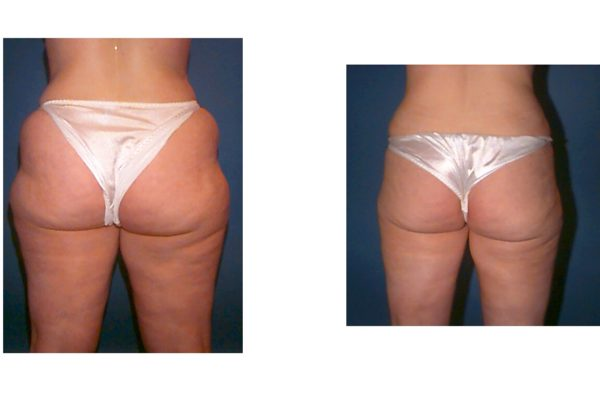 Hip and outer thigh liposuction surgery results