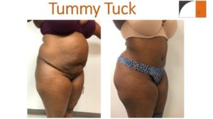 Larger woman with Tummy tuck abdominoplasty before after