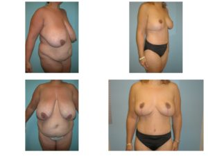 Multiple views Tummy tuck and breast reduction surgery