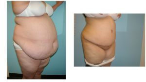 Very large woman before after Panniculectomy