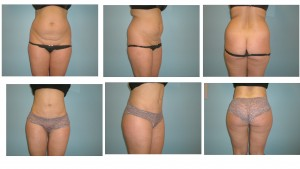 Multiple views of tummy tuck result