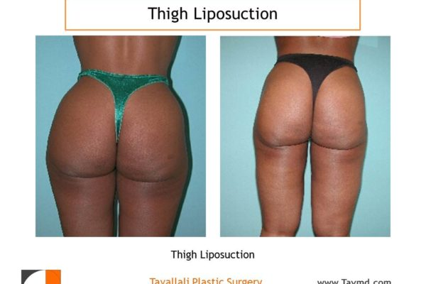 Outer and inner thigh liposuction surgery result Virginia