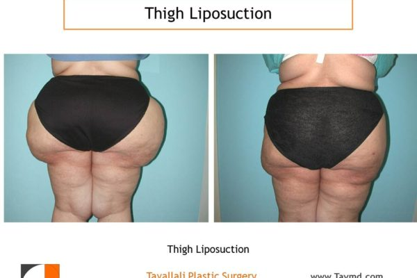 Huge outer Thigh liposuction surgery before after Virginia
