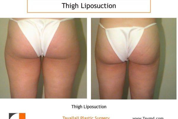 Inner Thigh liposuction surgery result Virginia