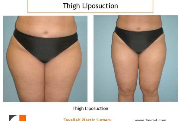 Thigh liposuction surgery Virginia