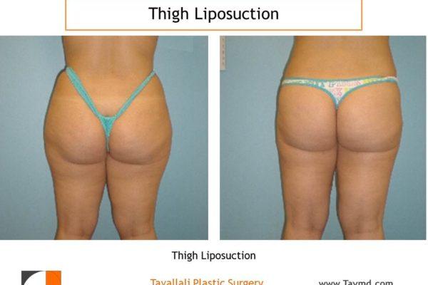 Thigh liposuction surgery Virginia back view