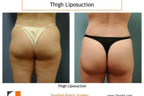 Thigh lipo result